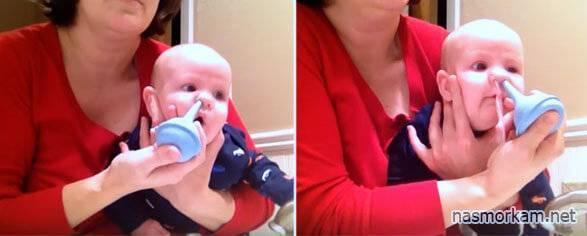 Использование физраствора для промывания носа