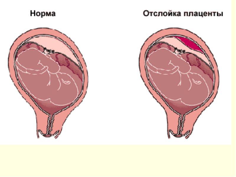 Гипоксия плода: причины, признаки, диагностика и лечение