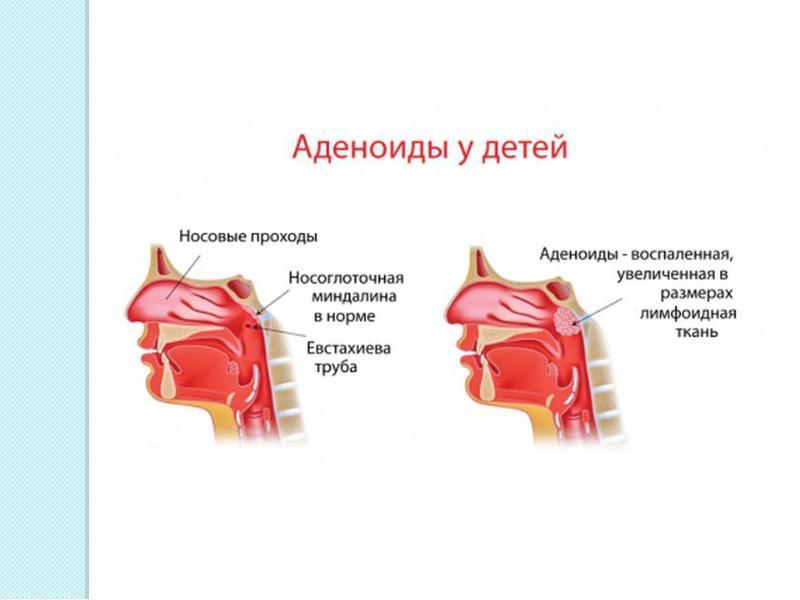 Лечение хронического аденоидита