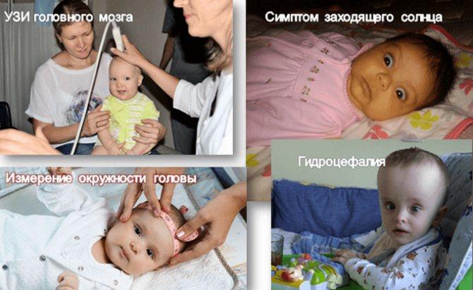 Лечение и симптомы внутричерепного давления у детей, грудничков. как измерить, признаки вчд - поликлиника №8 город владивосток
