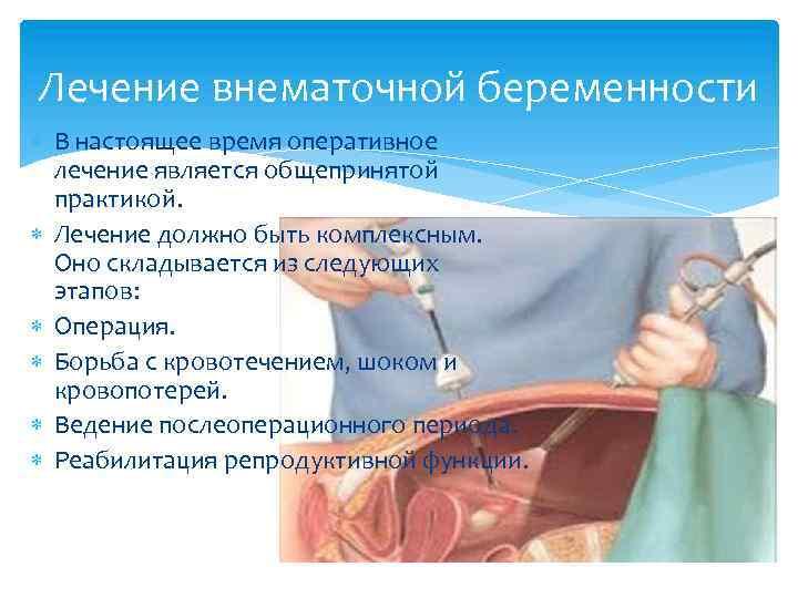 Внематочная беременность. причины, симптомы, диагностика и лечение :: polismed.com