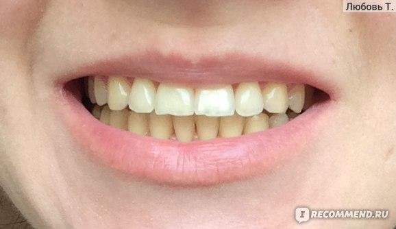 Можно ли носить брекеты во время беременности? - центр стоматологии «тихонова» в туле