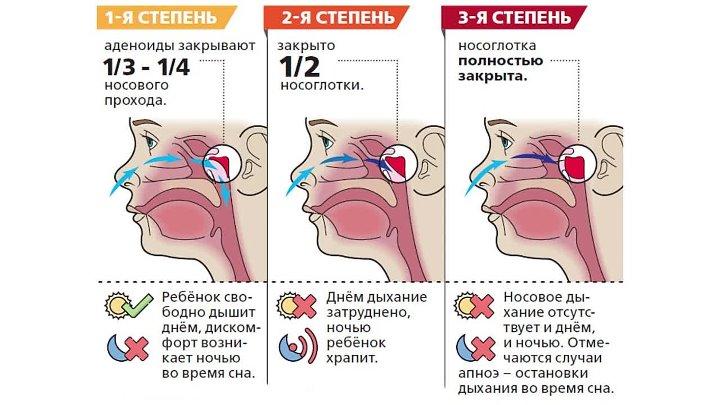 Лечение хронического аденоидита у детей и взрослых