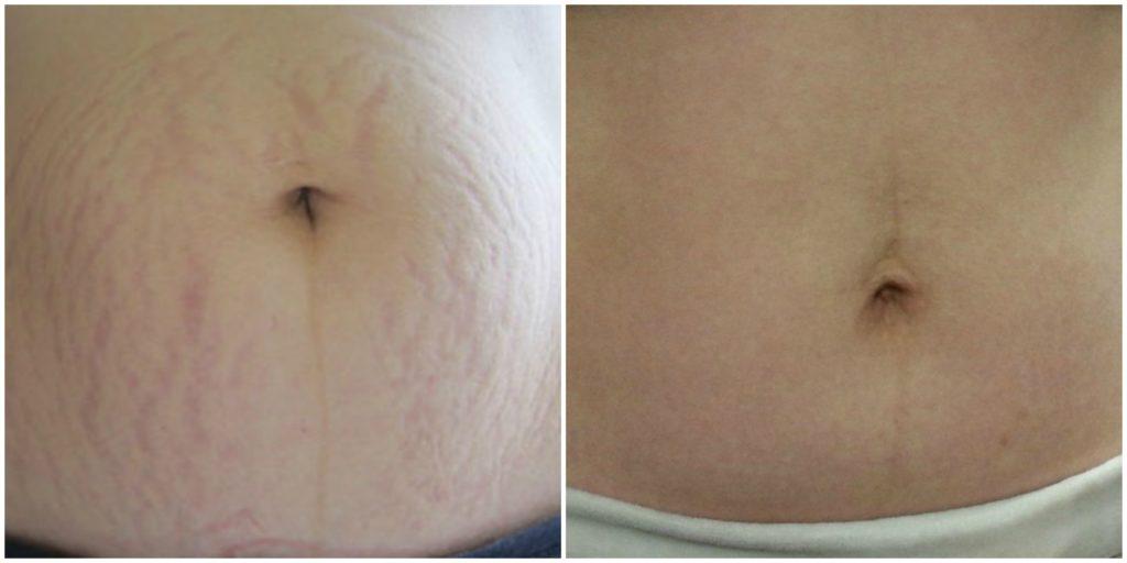 Средства от растяжек кожи для беременных