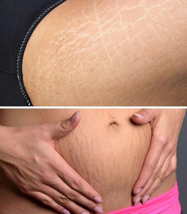 Удаление растяжек, как избавиться и удалить после похудения   доктор борменталь