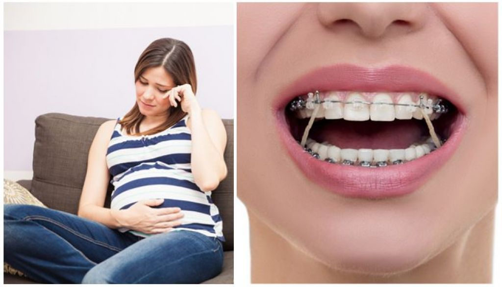 Брекеты и беременность, можно ли носить брекеты во время беременности?