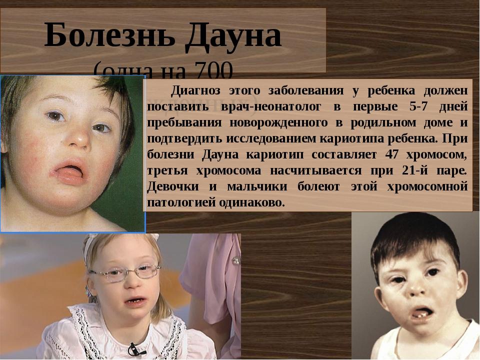 Синдром дауна – причины, развитие и сопровождение детей