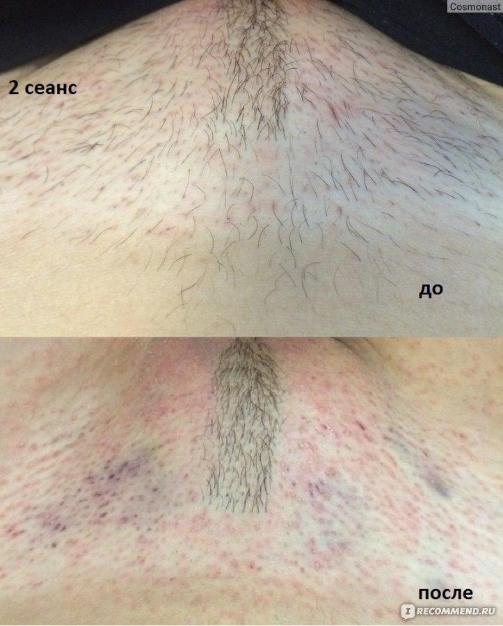 Лазерная эпиляция во время беременности   лазерная эпиляция в клинике неомед   санкт-петербург, (812) 249-0-249