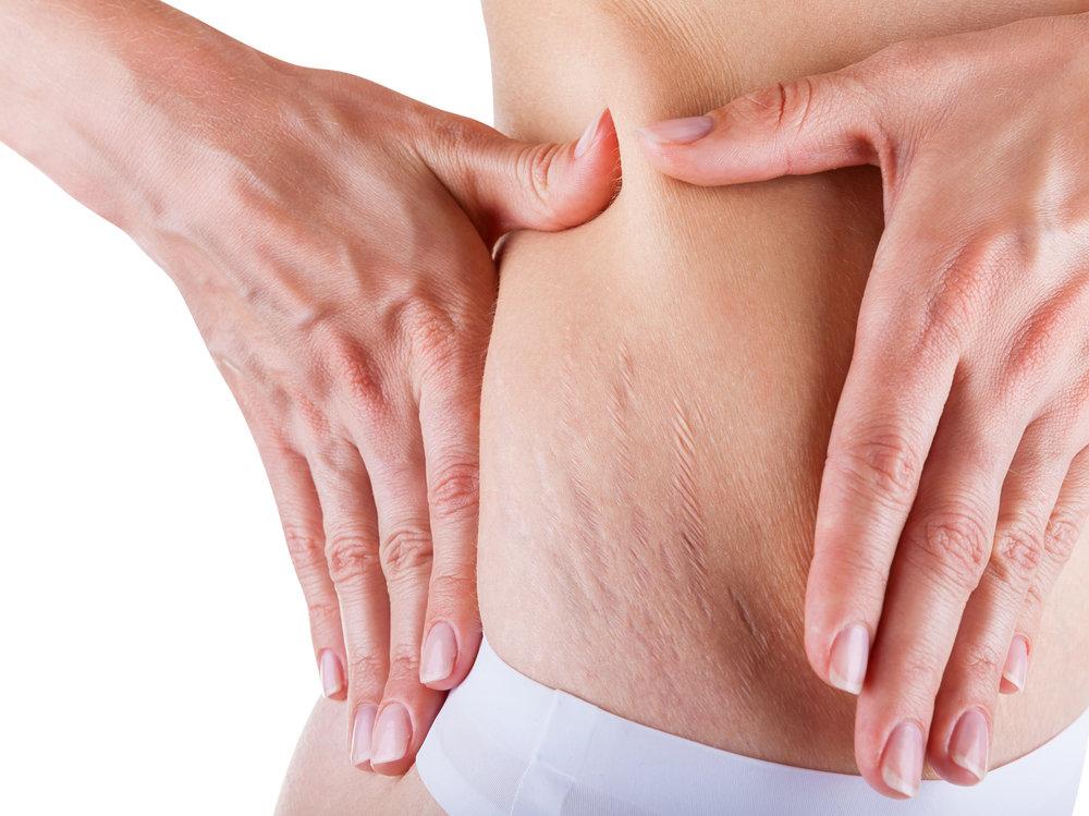 4 ошибки в борьбе с целлюлитом — советы врачей «евромед клиники»