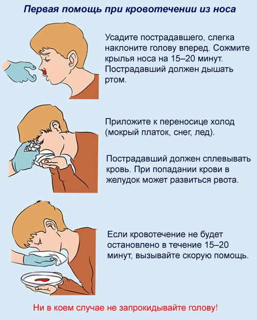 Причины и лечение носового кровотечения у подростков - мурманская городская поликлиника № 5