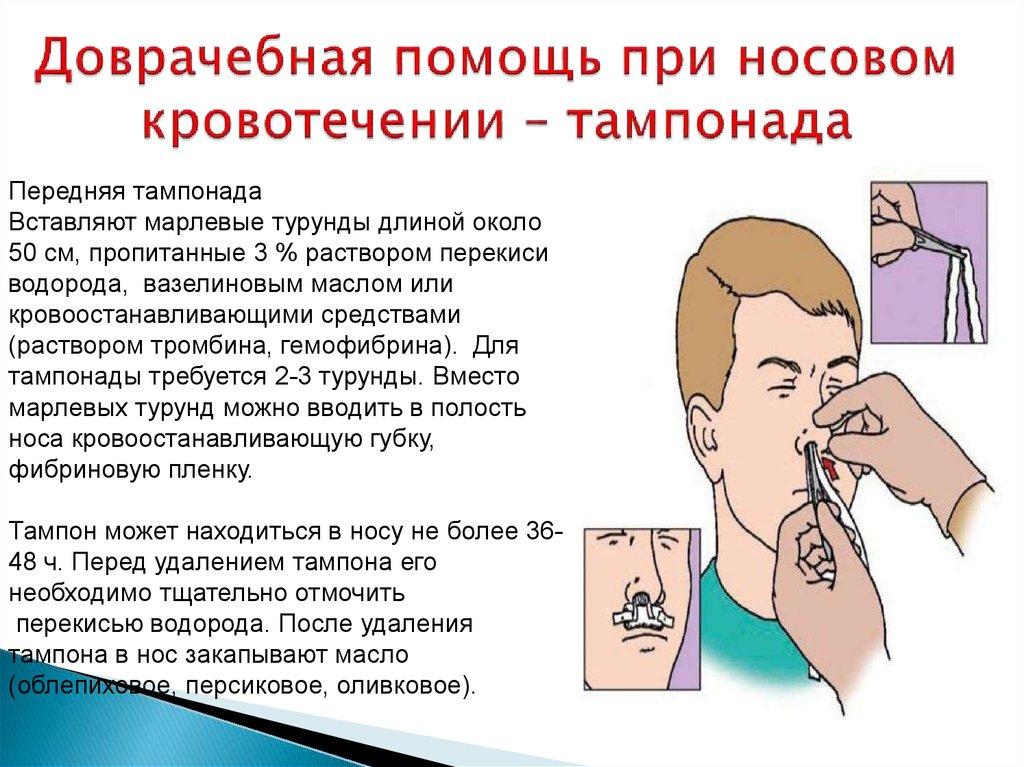 Носовое кровотечение у детей - симптомы болезни, профилактика и лечение носового кровотечения у детей, причины заболевания и его диагностика на eurolab