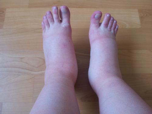 Отеки ног и варикоз при беременности