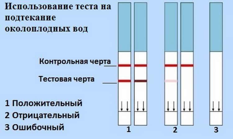 Индекс амниотической жидкости — околоплодных вод