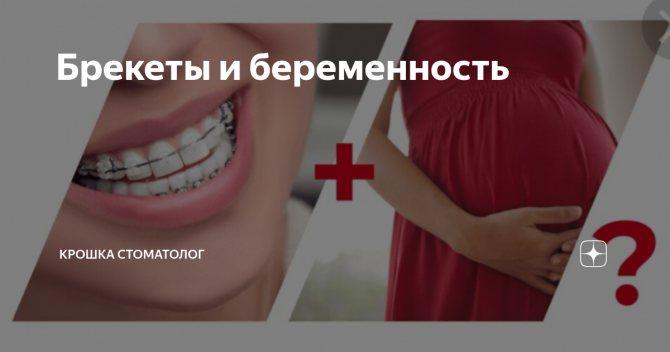 Больно ли ставить брекеты и снимать их | болят ли зубы от брекетов