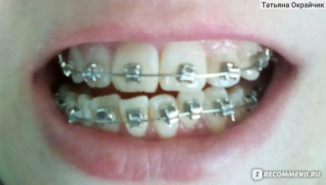 Нужно ли удалять зубы мудрости - расставим всё по местам