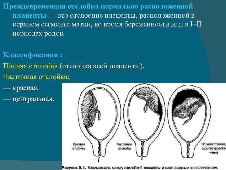 Преждевременная отслойка плаценты