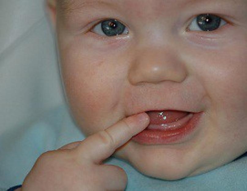 Когда выпадают молочные зубы у детей – схема, сколько их у ребенка