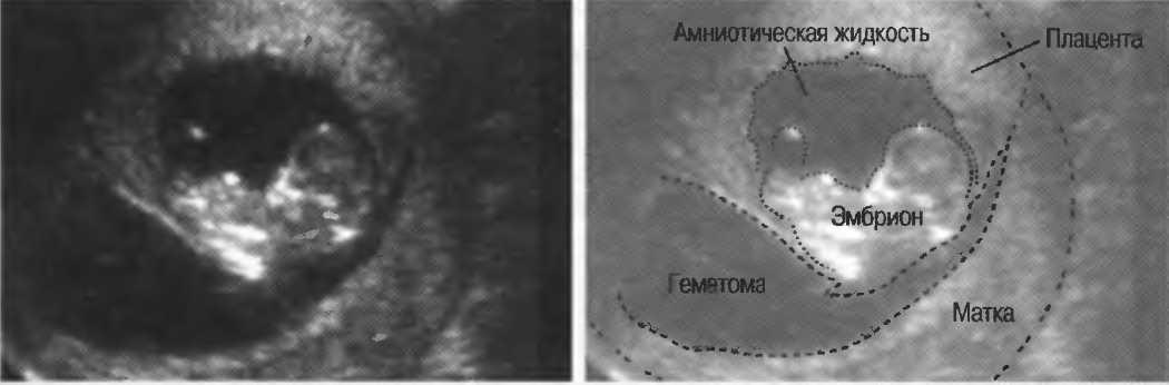 Преждевременная отслойка нормально  расположенной плаценты - симптомы болезни, профилактика и лечение преждевременной отслойки нормально  расположенной плаценты, причины заболевания и его диагностика на eurolab