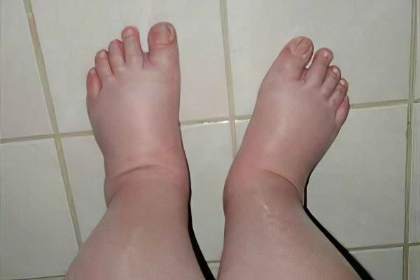 Отёки ног при беременности: норма или патология | клиника «гармония»