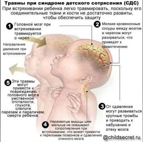 Сотрясение головного мозга у грудничка: симптомы и признаки у детей до года - как распознать и определить, как проявляется, диагностика и последствия