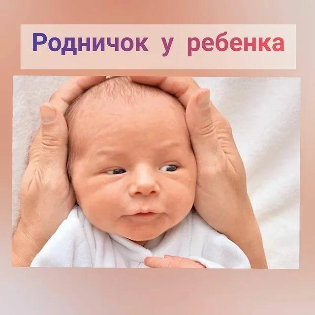 Родничок у новорожденных: зачем он нужен и о чем может предупредить родителей