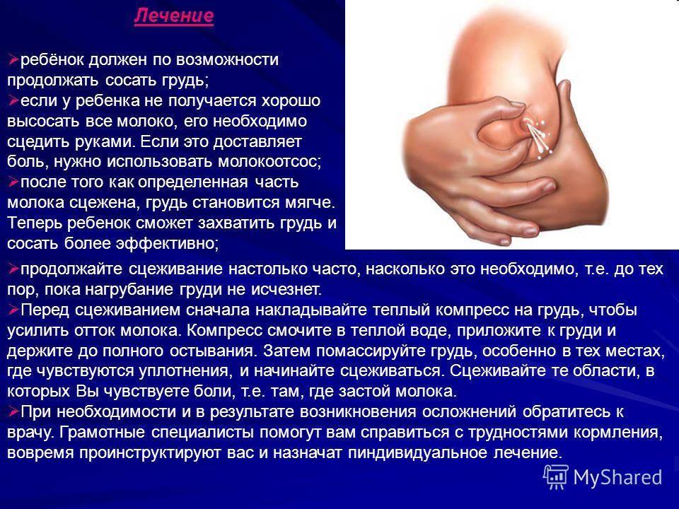 Лактостаз: симптомы, причины, лечение, последствия