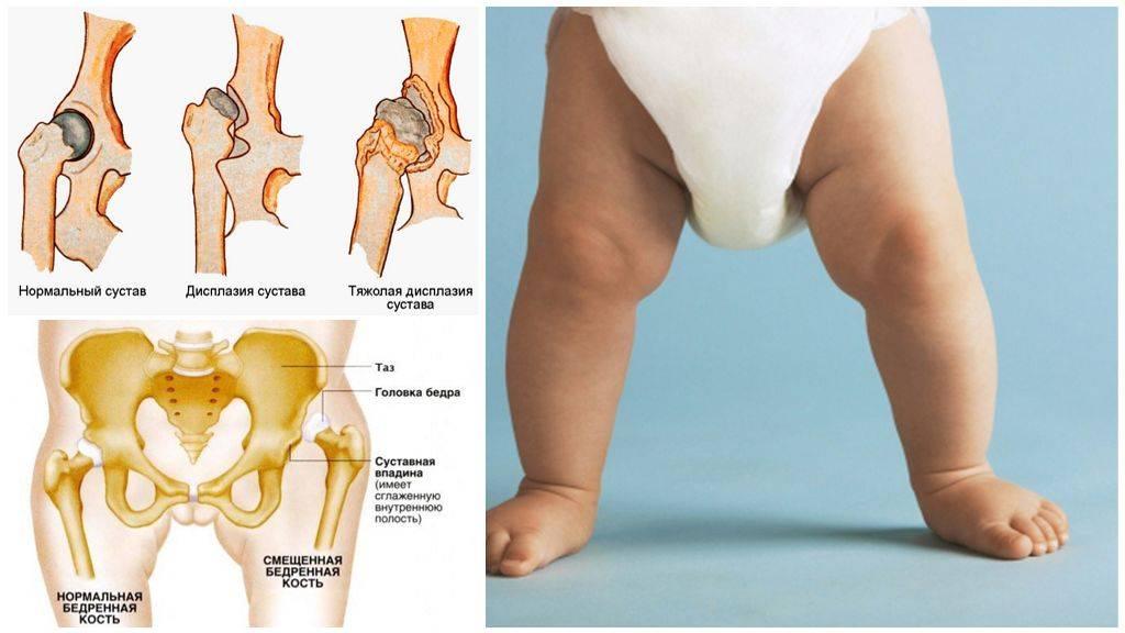 Дисплазия тазобедренных суставов у ребенка - лечение