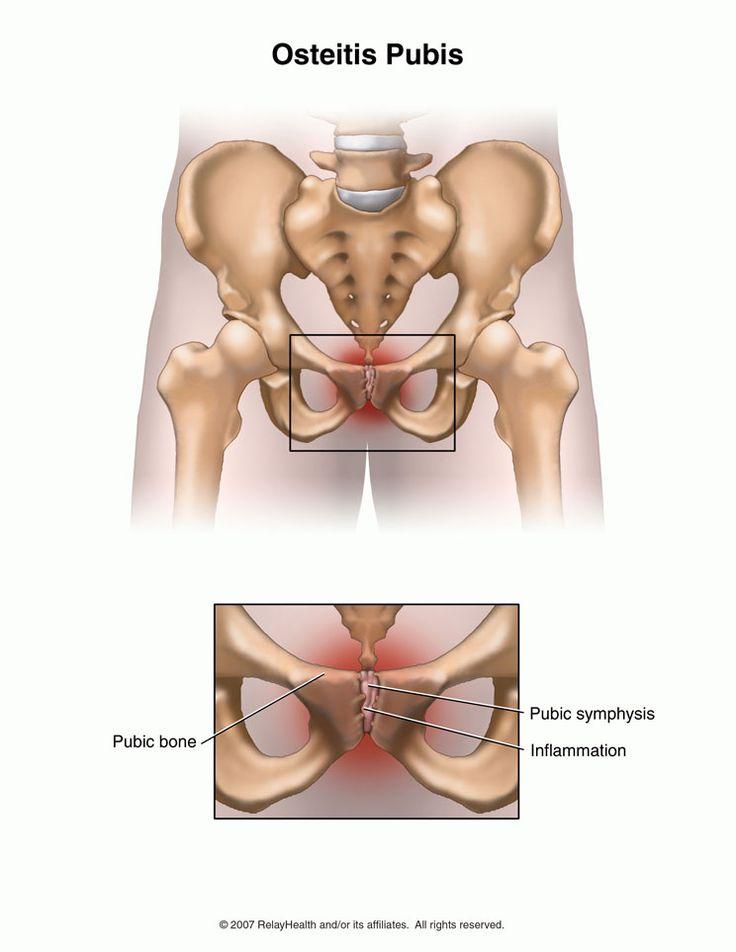 Симфизит - симптомы, лечение, причины болезни, первые признаки