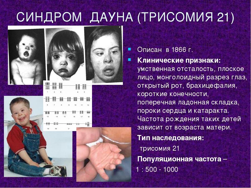 Синдром дауна – причины, развитие и сопровождение детей в хабаровске