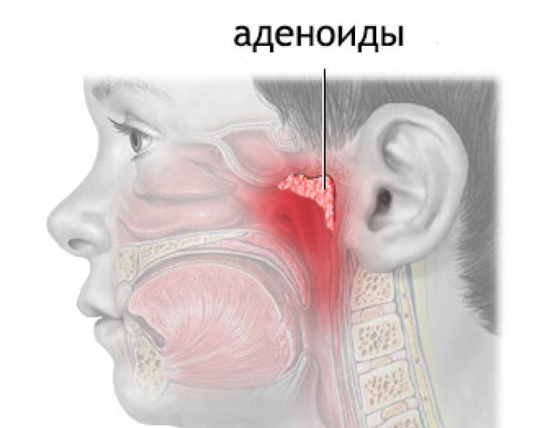 Хирургическое лечение при патологии миндалин в детском возрасте. что же такое миндалина?