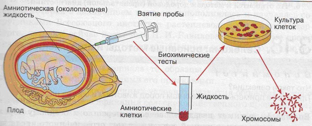Цитогенетическое исследование (кариотип) амниотической жидкости - амниоцентез