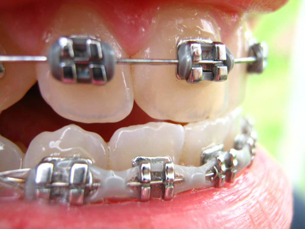 Выравнивание зубов при беременности: брекеты или элайнеры?