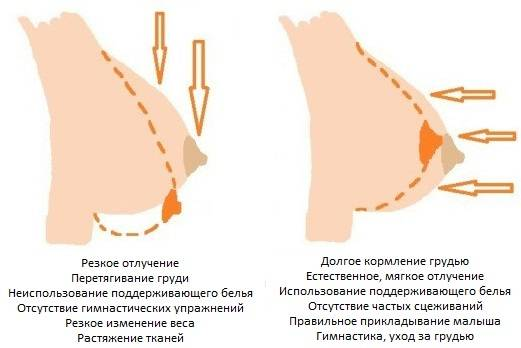 Кожа груди: уход во время беременности и кормления