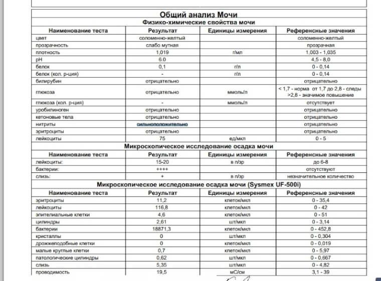 Глюкоза в моче: причины появления глюкозы в моче, прием эндокринолога в москве