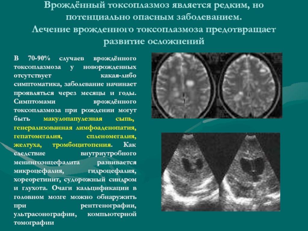 Токсоплазмоз при беременности. анализы на токсоплазмоз