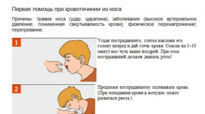Чем опасны носовые кровотечения у детей и как их лечить - полезные статьи отделения педиатрии ао «медицина» (клиника академика ройтберга)
