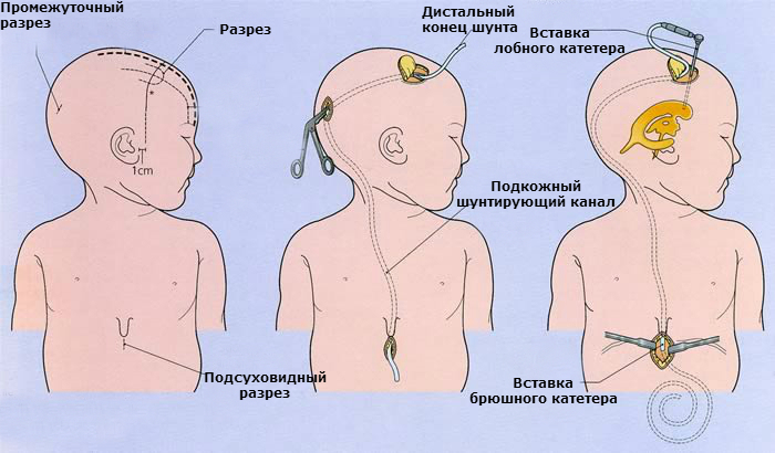 Внутричерепное давление у ребенка - медицинский центр «эхинацея»