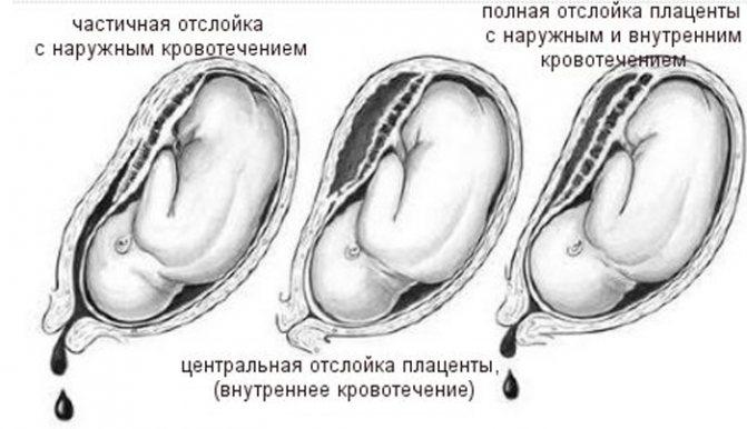 Редукция эмбрионов: что это такое и когда проводят - статья репродуктивного центра «за рождение»