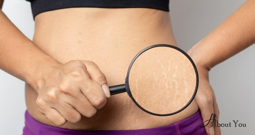 Профилактика растяжек при беременности и как бороться, топ-24 средства