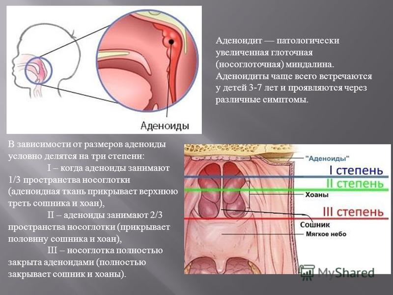 Аденоиды — большая медицинская энциклопедия