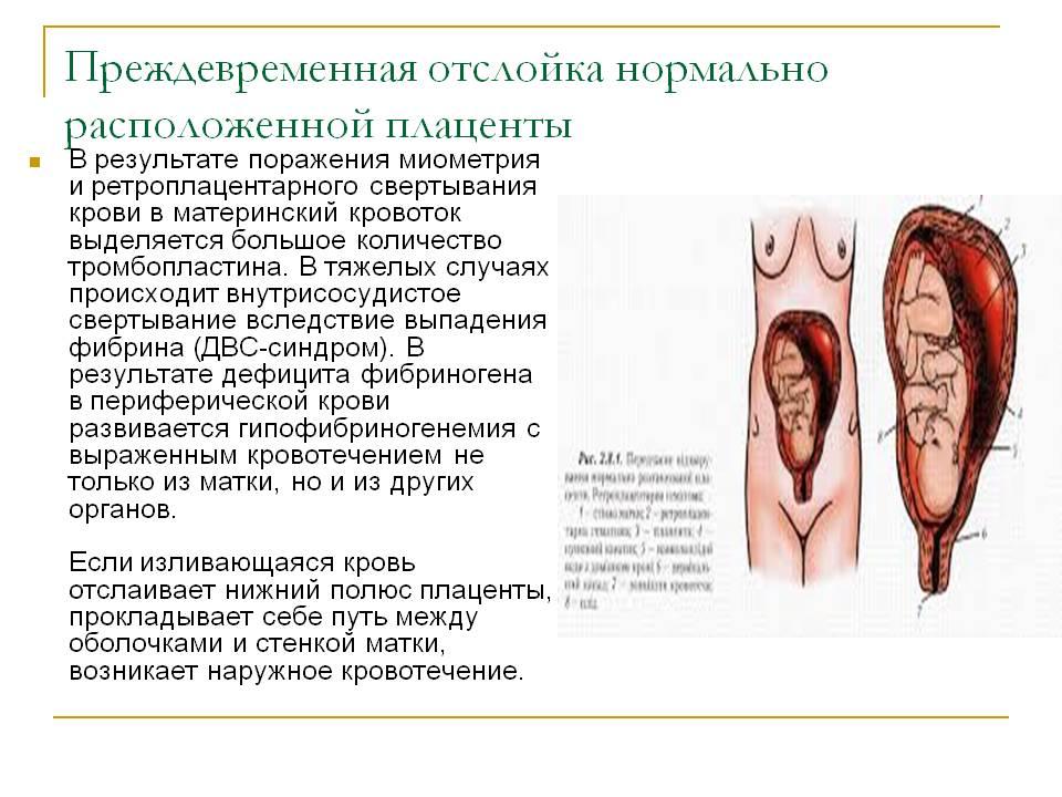 Признаки гипоксии плода, тактики выявления и лечения при беременности