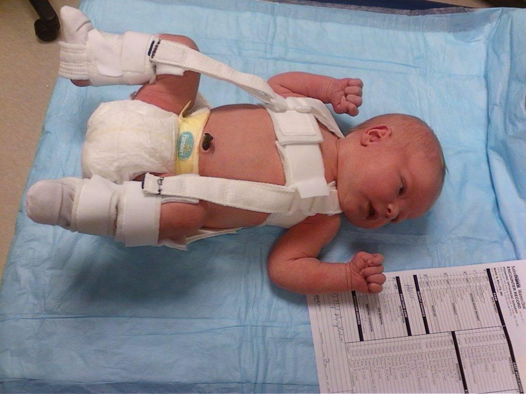 Дисплазия тазобедренных суставов у детей: диагностика и лечение детской дисплазии в одессе | медицинский дом odrex