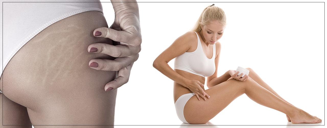 Какое средство предотвратить растяжки при беременности