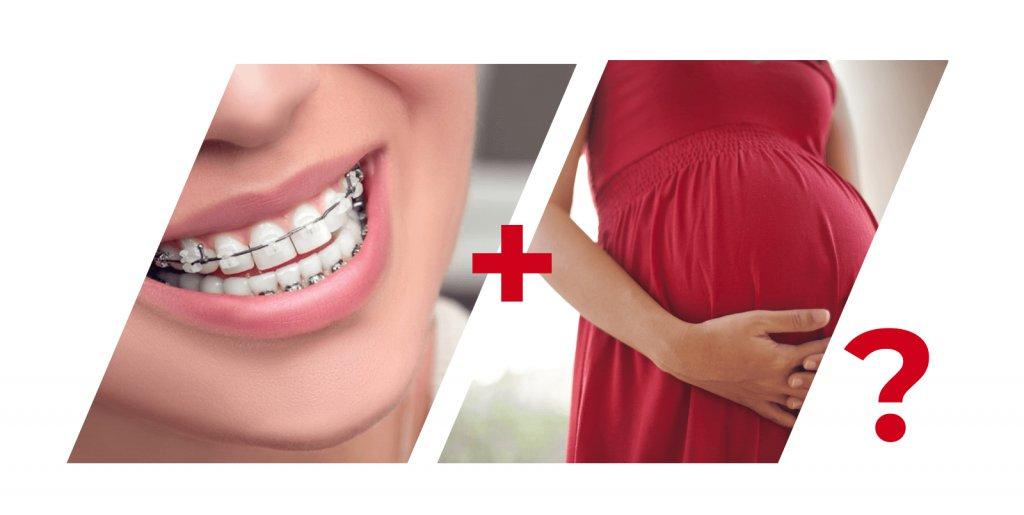 Отказываться ли от брекетов при беременности