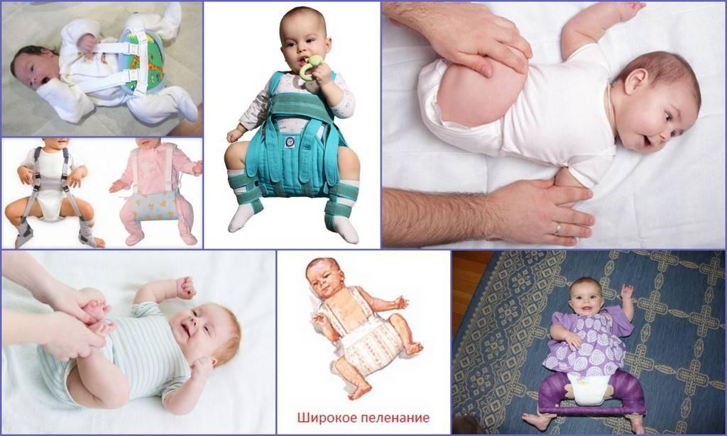 Причины белого налета на языке у ребенка | грудничка, и его лечение