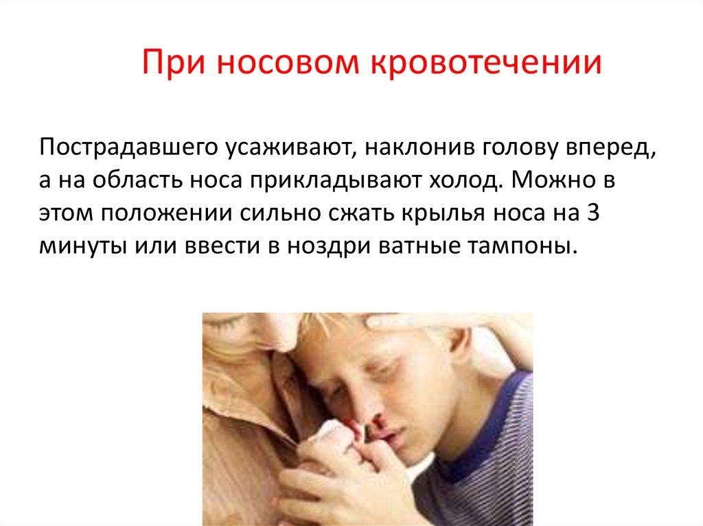 Причины носовых кровотечений у детей. - страна мам