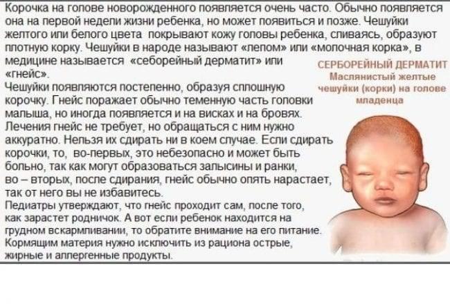 Как убрать корочки на голове у ребенка?