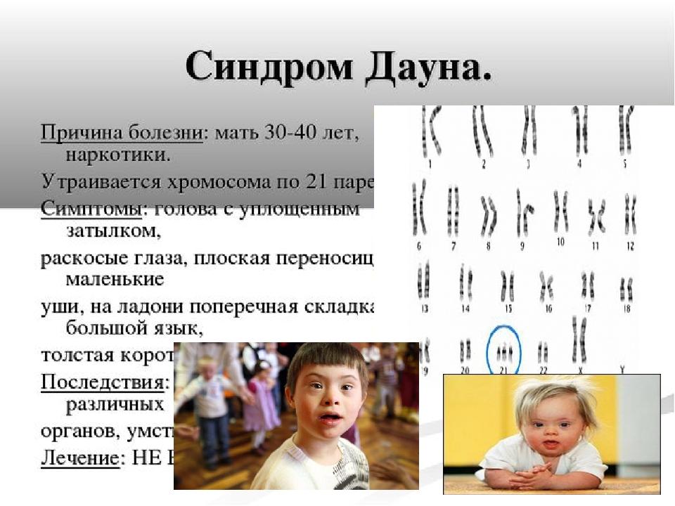 Развиваем ребенка с синдромом дауна