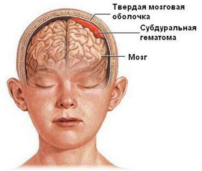 Как вовремя распознать у ребенка черепно-мозговую травму: объясняет врач