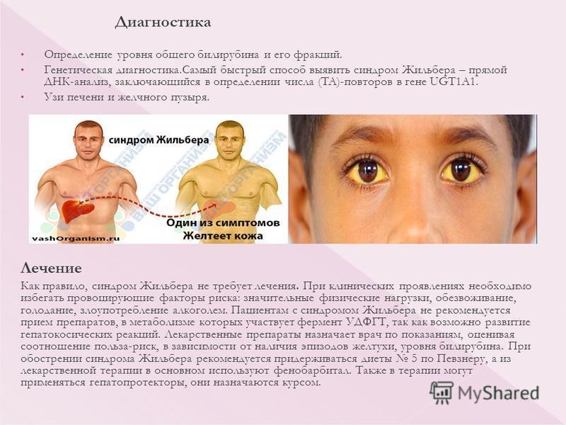 Наследственная гипербилирубинемия. синдром жильбера: исследования в лаборатории kdlmed